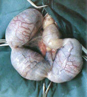 Peripheres Nervensystem der weiblichen Geschlechtsorgane